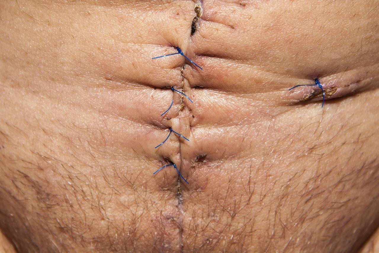 手術後の赤い傷跡を消したい!消し方はある?テーピングの方法
