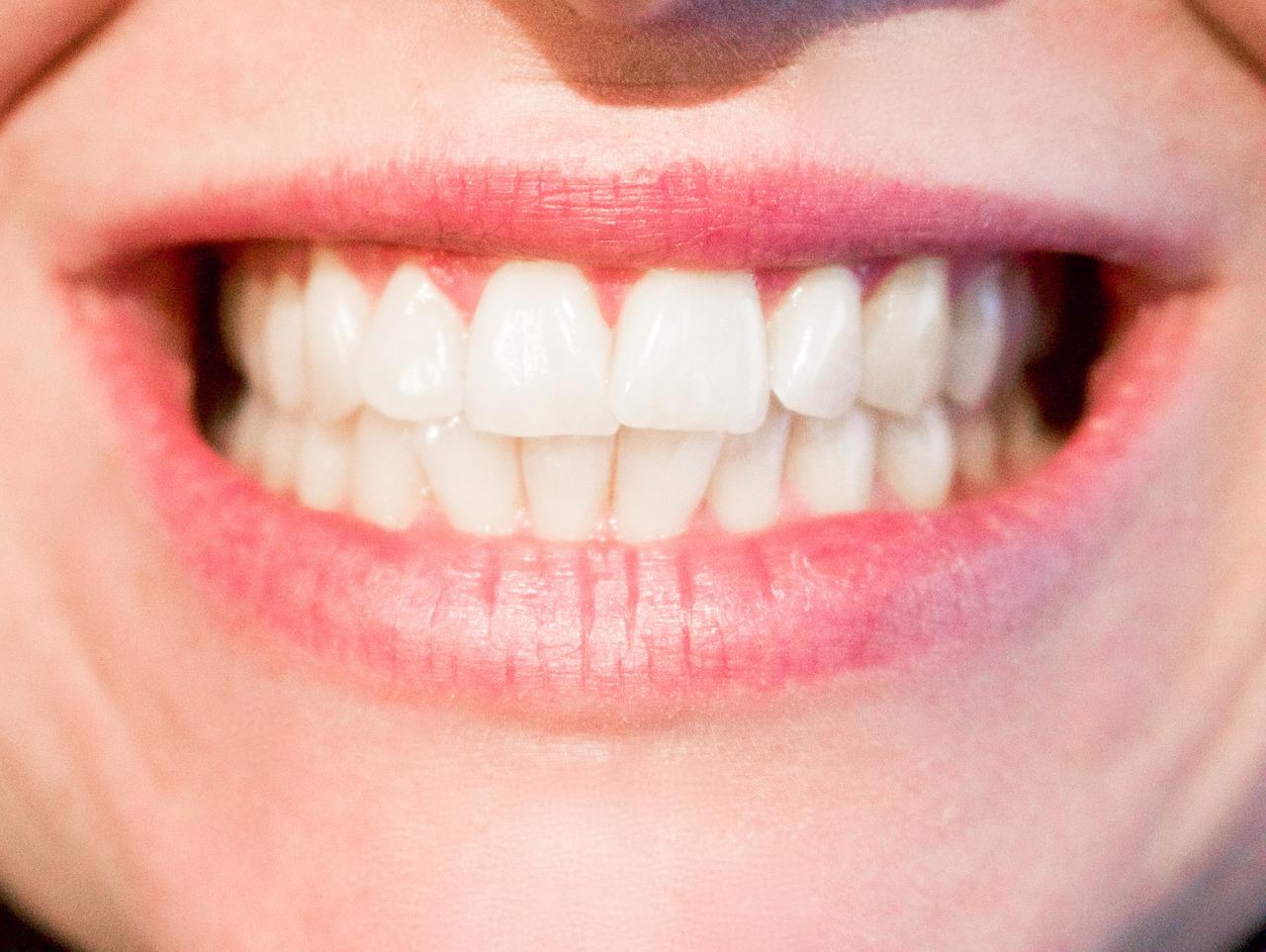 歯茎からの出血・・・大量出血は病気のサイン?