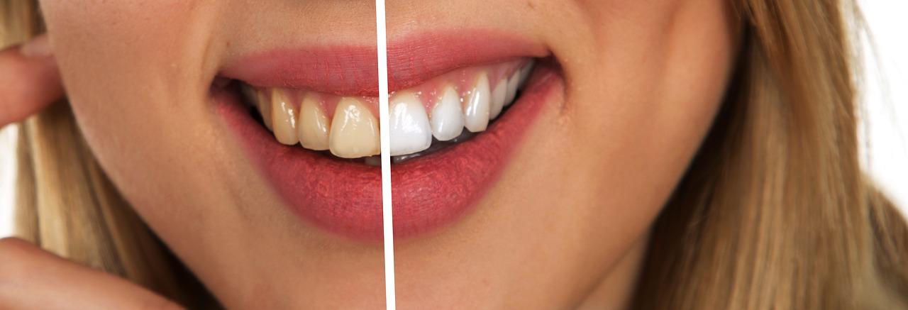 抗生剤ミノマイシンの副作用…歯が色素沈着で着色!幼児・妊婦は注意
