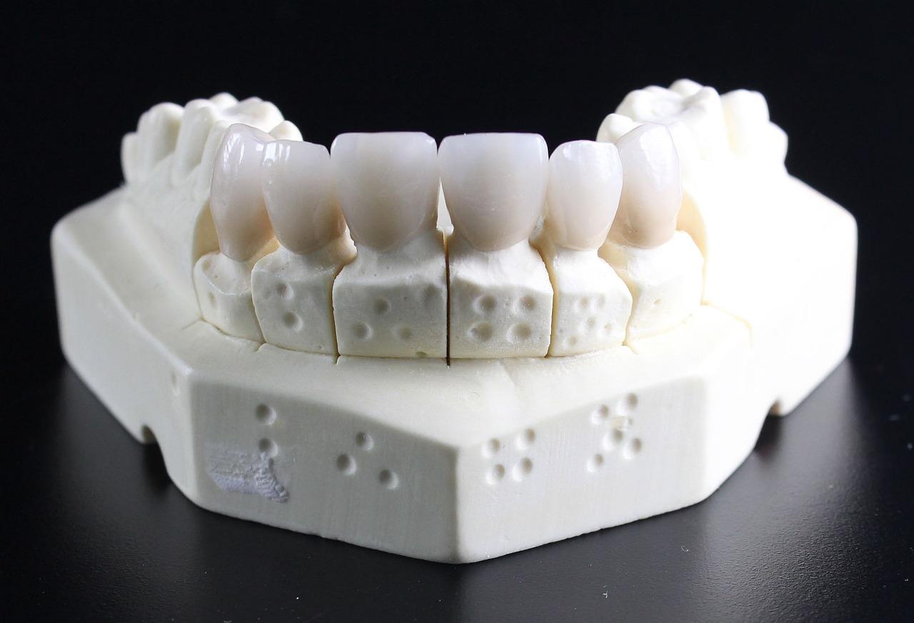 セラミックを前歯に入れるなら…美しいのは「保険適用外」のセラミック